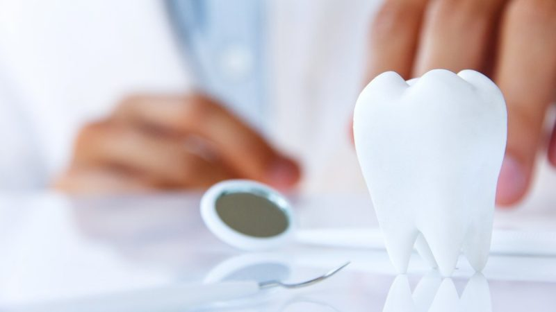 Dental Crowns or Teeth Implants