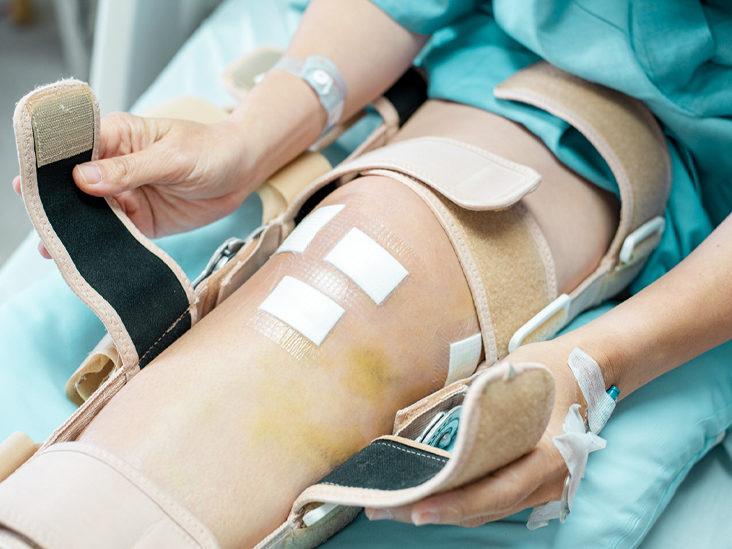 Reasons for the procedure of Knee Arthroplasty